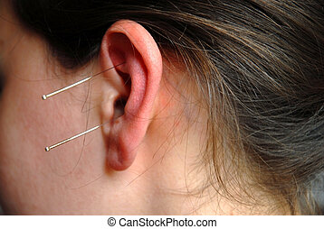 Alternative Therapy: acupunture needles - The doctor uses...
