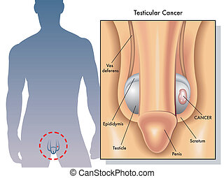 Testicular cancer - medical Illustration of the effects of...