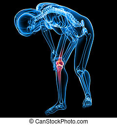 Female knee pain anatomy on black - 3d rendered Illustration...
