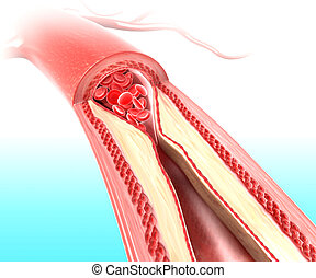 Atherosclerosis anatomy - 3d rendered illustration of...