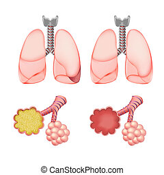 Alveoli In Lungs Set, Isolated On White Background, Vector...