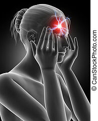 headache - illustration of a woman having a megrim
