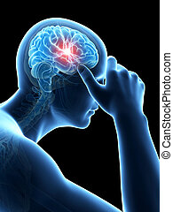 headache - illustration of a man having a headache