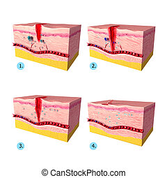 Tissue repair on human skin - 3d rendered illustration of...