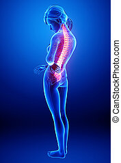 Female back pain anatomy - 3d rendered illustration of...