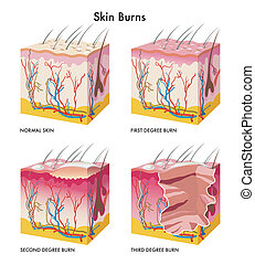 Skin Burns - medical illustration of the formation of skin...