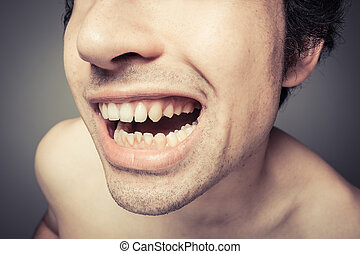 Young man with plaque on his teeth - Young man is showing...