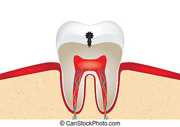 Crop of toothwith caries. EPS 10 vector illustration