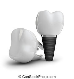 tooth implant, and molar on white background