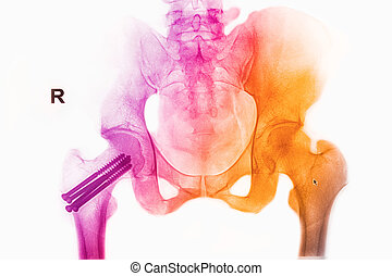 colorful pelvis x-rays image show fracture head of femur...
