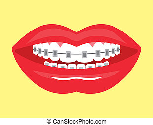 smile with aesthetic braces - Beautiful smile with aesthetic...
