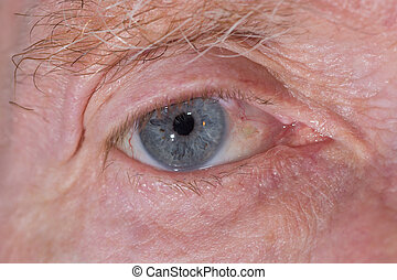 eye examination - close up of the eye post cataract...