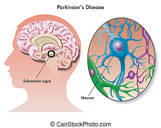 Parkinsons disease - medical illustration of the symptoms of...