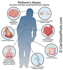 Parkinsons disease - medical illustration of the non-motor...