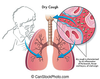 dry cough - medical illustration of the symptoms of dry...