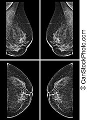 Lateral mammogram of female breast. In higher magnification...