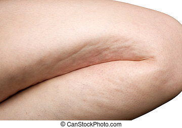 woman leg cellulite - detail of cellulite on woman leg...