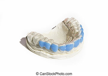 Plaster mold of the dental arch with a silicone custom