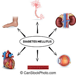 Diabetes mellitus affected areas. Diabetes affects nerves,...