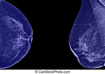 Lateral mammogram of female breast In higher magnification...