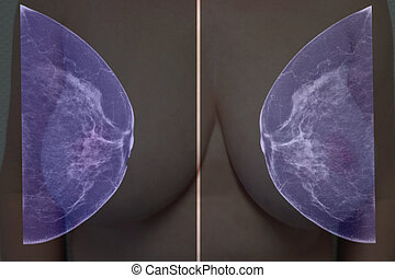 Mammogram - Lateral mammogram of female breast. In higher...