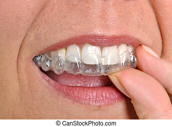 Invisible braces - Woman putting in her invisible braces