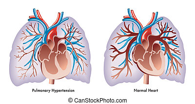 Pulmonary Hypertension - medical illustration of symptoms of...
