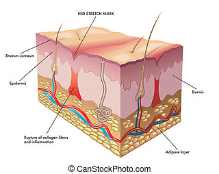 red stretch mark - medical illustration of the process of...