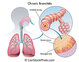 Chronic Bronchitis - medical illustration of the effects of...