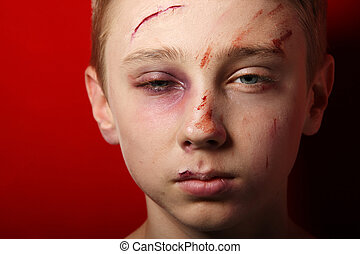 Child abuse - Scarred beaten up kid