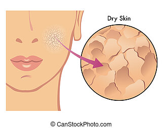 dry skin - medical illustration of the effects of dry skin