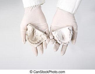hands holding dental gypsum models, dental concept - hands...