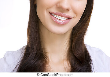 Beautiful smiling girl with retainer for teeth, on white