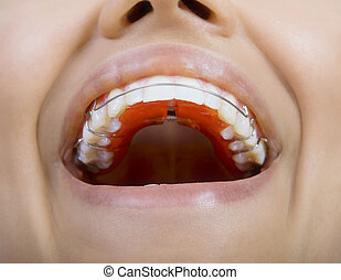 Close Up Of Smiling Teeth with retainer