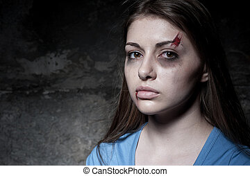 Beaten up woman. Young beaten up woman looking at camera...