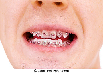 Teeth with braces - Teeth with braces