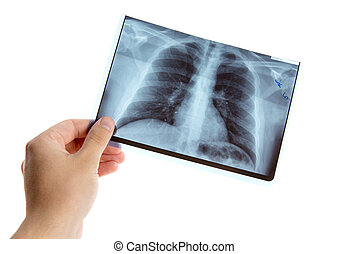 Male hand holding lung radiography - Male hand holding lung...