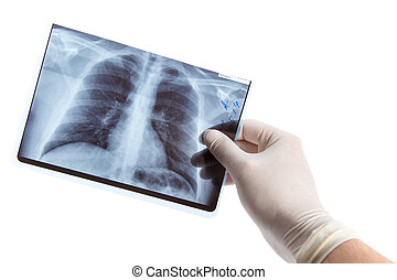 Male hand in medical glove holding lung radiography - Male...