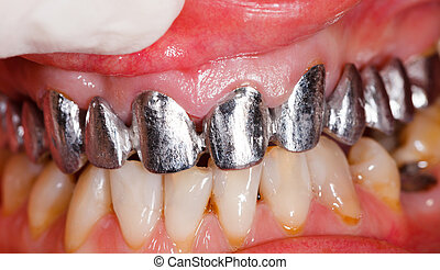 Metal basis bridge - Metal basis dental bridgein mouth...