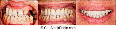 dentes, antes de, e, após, tratamento,