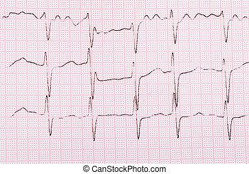 cardiograma, cinta, hombre