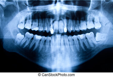 Dental X-ray - Full mouth panoramic in X-ray, showing all...