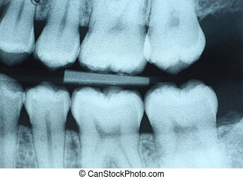 Dental X-Ray - This is a dental x-ray (bite-wing) of the...