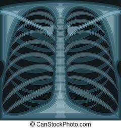 pecho, X, rayo