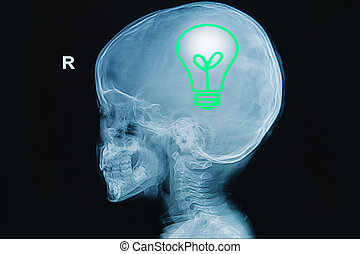 x-ray of human head with light bulb in a brain ,concept...