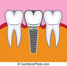 Tooth Implant - tooth implant illustration clip-art eps