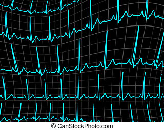ECG tracing monitor. EPS 8 vector file included