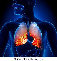 Pneumonia, -, polmoni, Infiammatorio, Cond