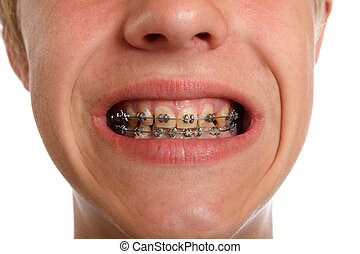 teeth braces
