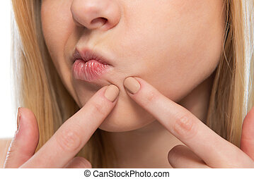 Closeup on teenager poping pimple